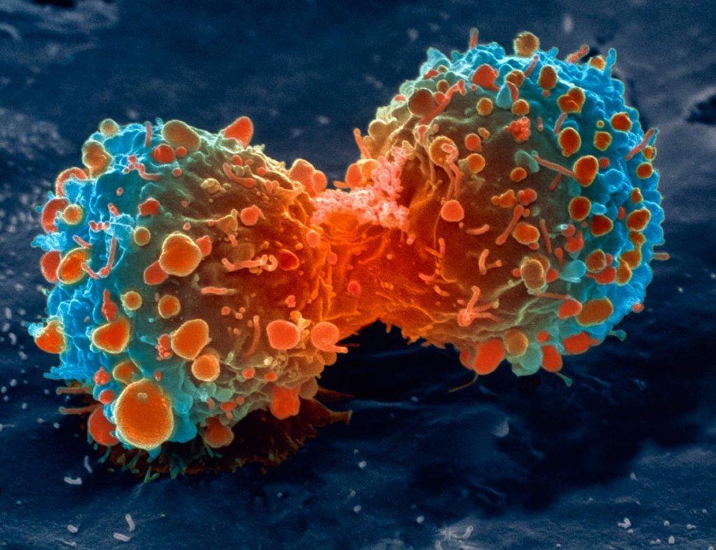 Рак при ВПЧ 33 типа