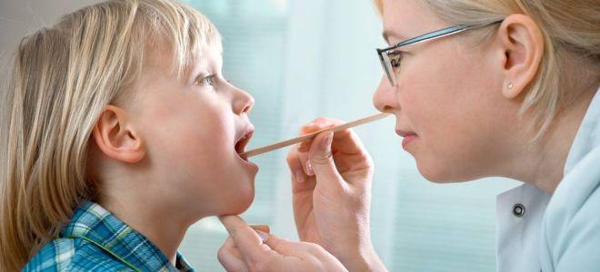 Что делать, если у ребенка красное горло и температура