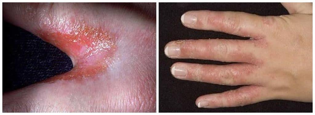Симптомы грибка на пальцах рук
