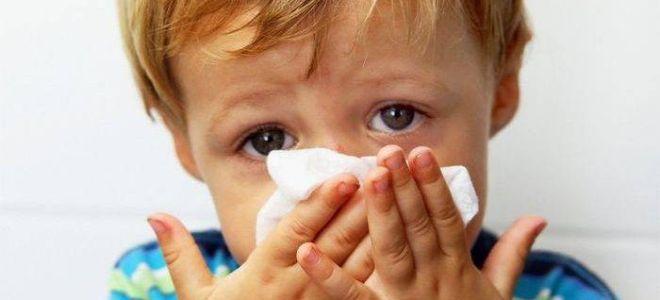 Причины и лечение постоянного насморка у ребёнка