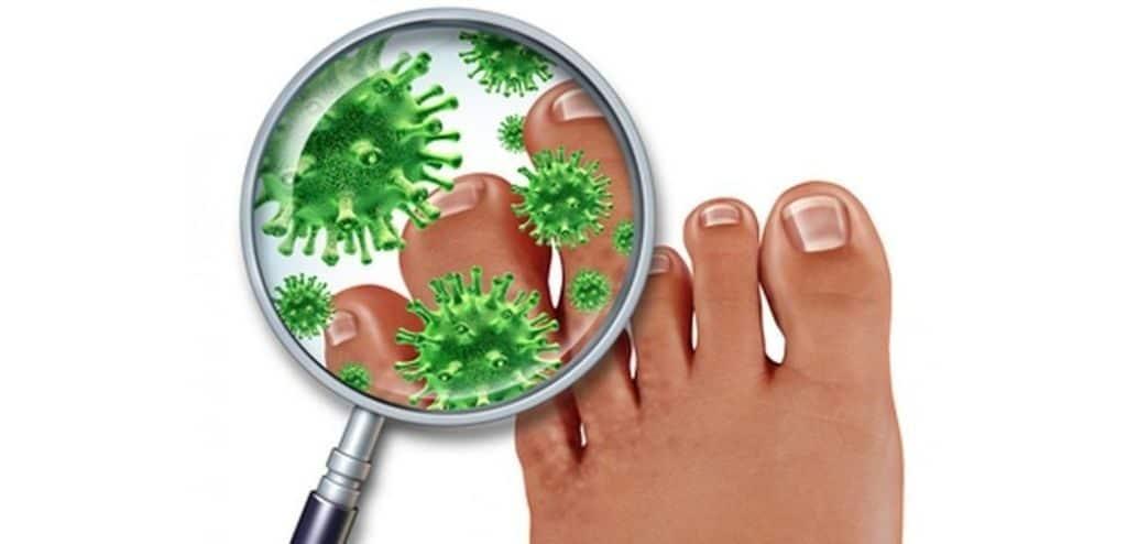 Анализ на грибок ногтей