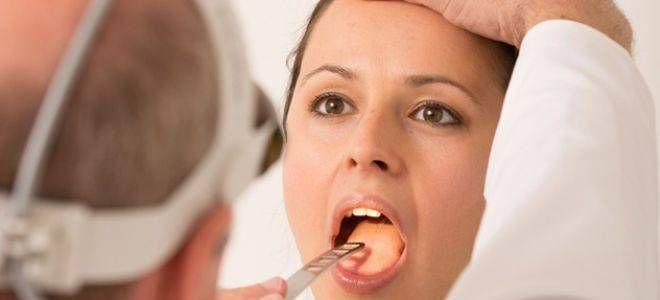 Золотистый стафилококк в горле у взрослых и детей: причины, признаки, диагностика и методы лечения