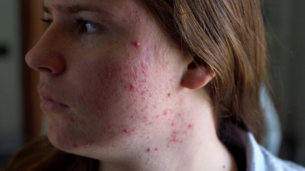 Полезные свойства янтарной кислоты для кожи