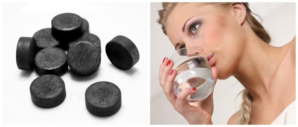 Внутреннее применение активированного угля при псориазе