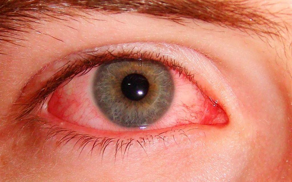 Симптомы грибка глаз