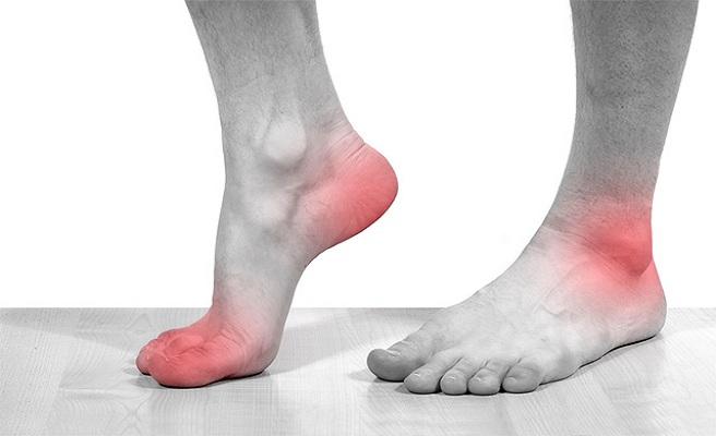 Болезнь суставов стопы