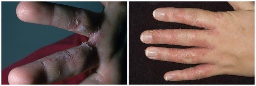 Признаки грибка между пальцами рук