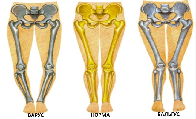 Деформация колен