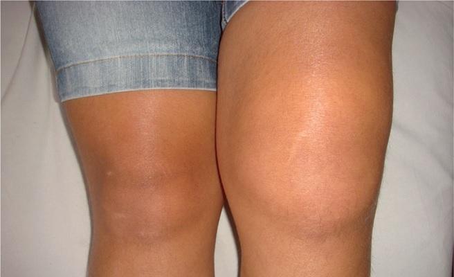 Деформированные колени