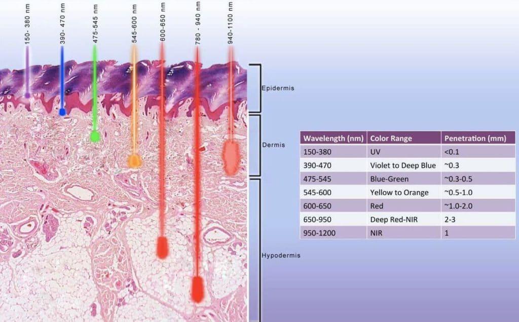 Ультрафиолетовые лучи при псориазе