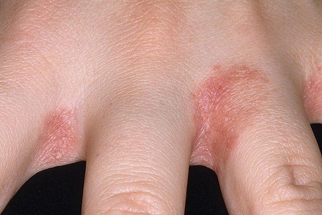 Симптомы грибка между пальцами рук
