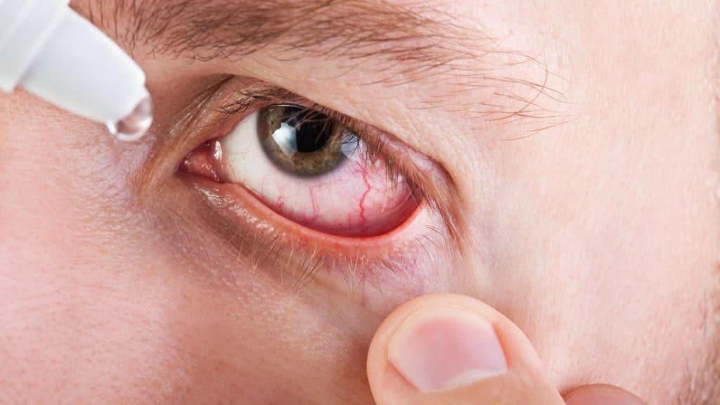 Капли при грибке глаз