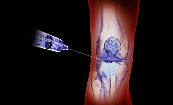 Как делать укол в колено