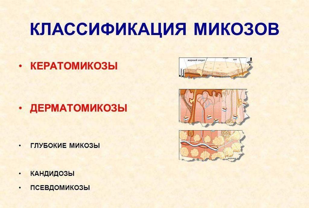 Виды грибковых заболеваний по глубине поражения