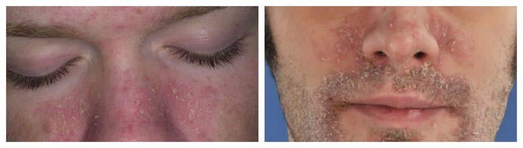 Симптомы псориаза на лице