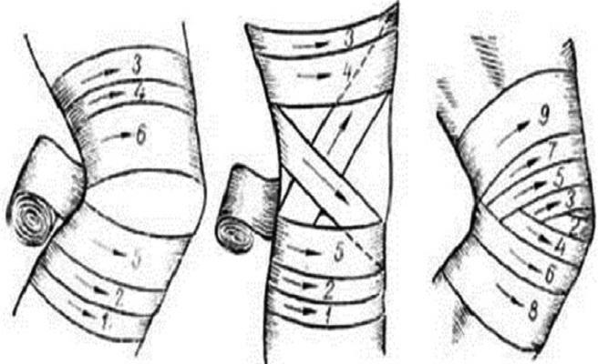 Перемотанное колено