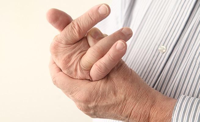 Узелки на пальцах руки