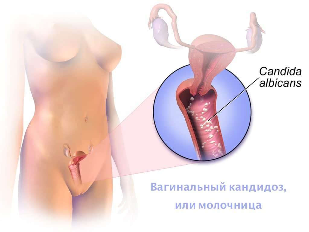 Кандидозный грибок у женщин