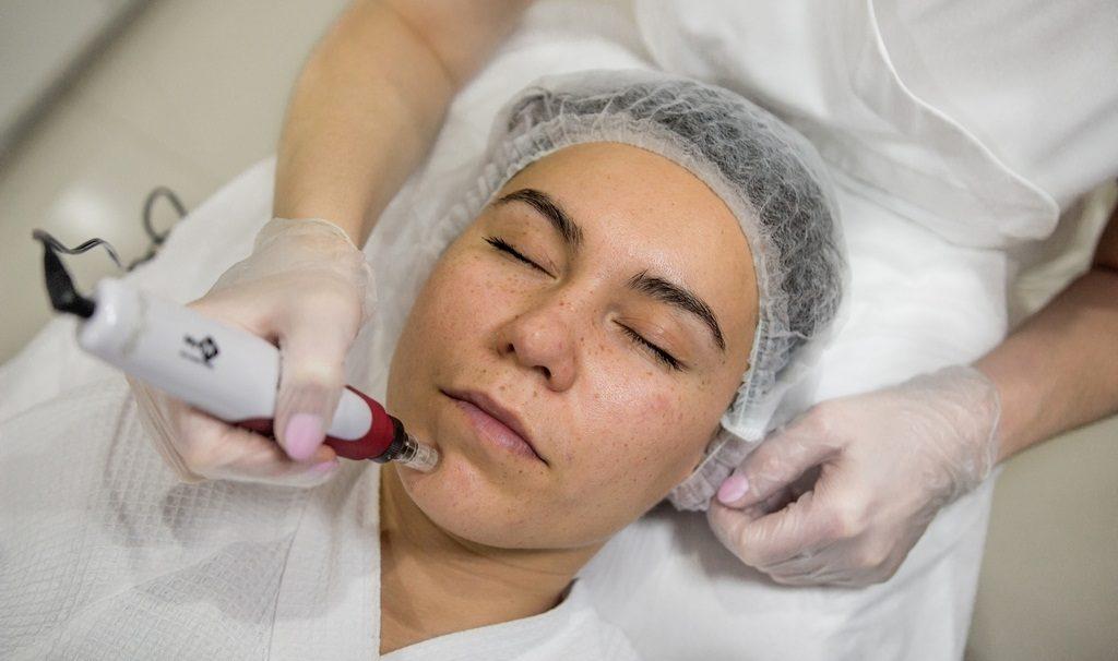 Фракционная мезотерапия лица
