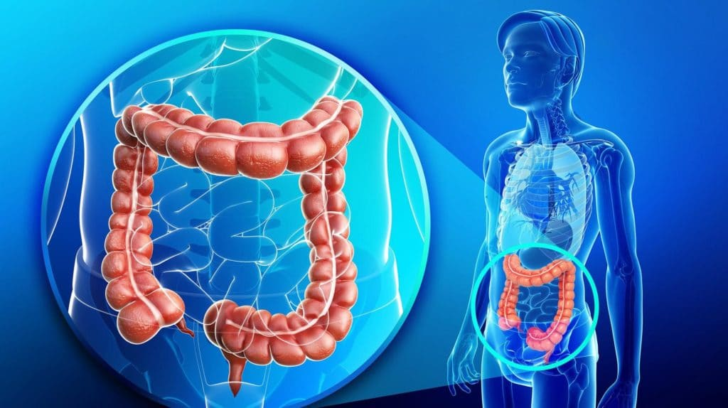 Поражение кишечника при ВПЧ 59 типа
