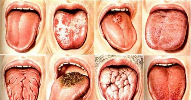 Виды глоссита языка
