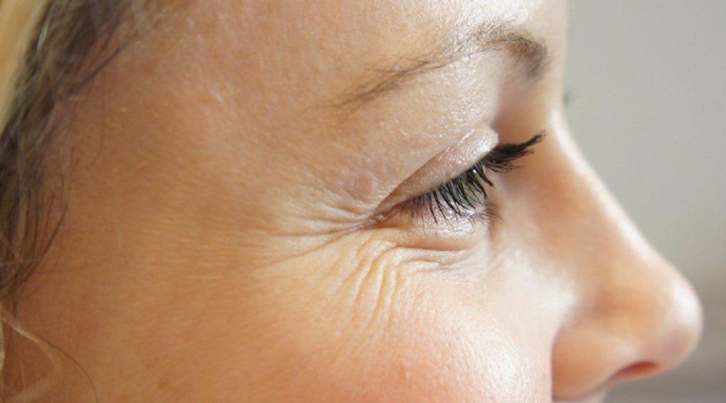 Показания к применению гиалуроновой кислоты от морщин