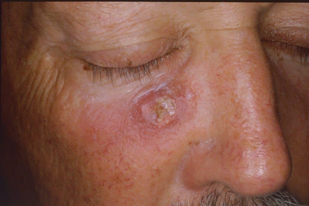 Кератопапиллома на коже