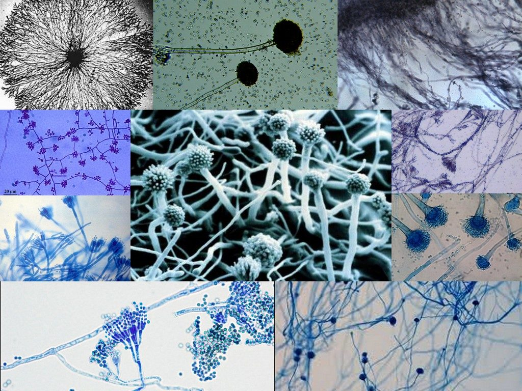 Мицелий грибка под микроскопом