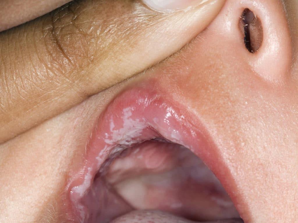 Дрожжевой грибок во рту