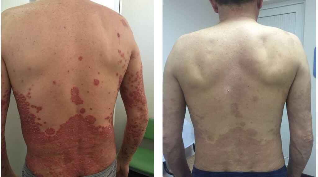 Фото до и после ПУВА терапии