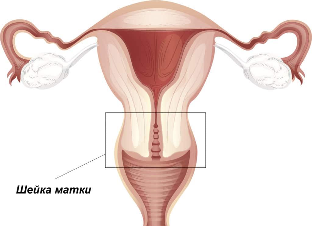 Рак шейки матки при ВПЧ 68 типа