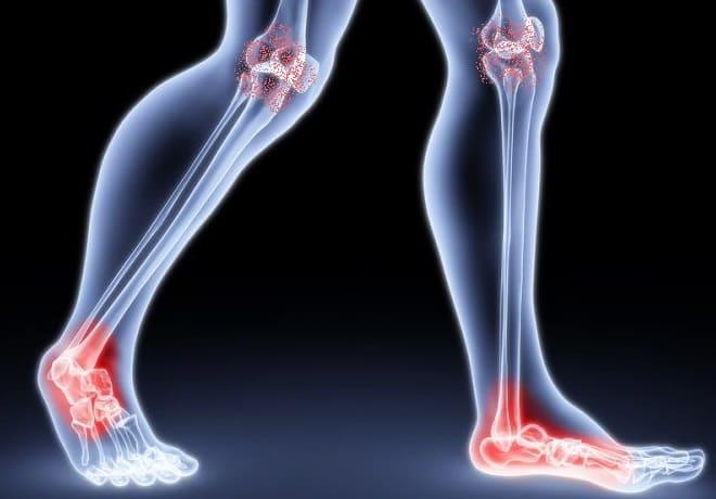 Посттравматический артроз коленного и голеностопного суставов