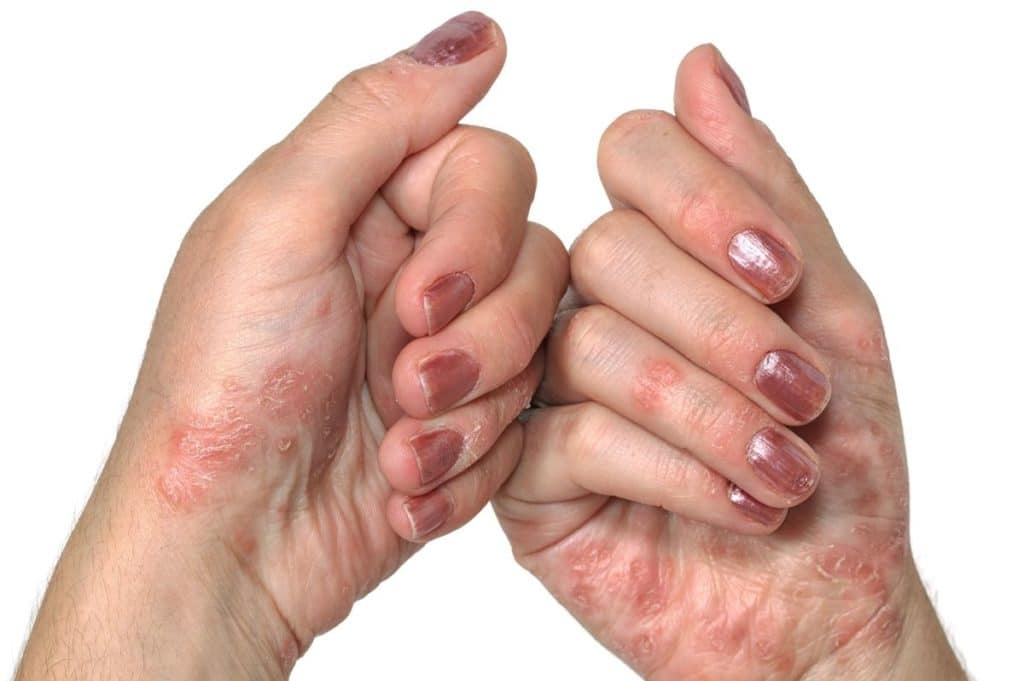 Начальная стадия псориаза на руках