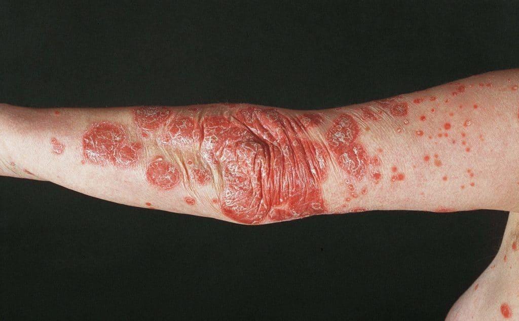 Моноклональные антитела в лечении псориаза