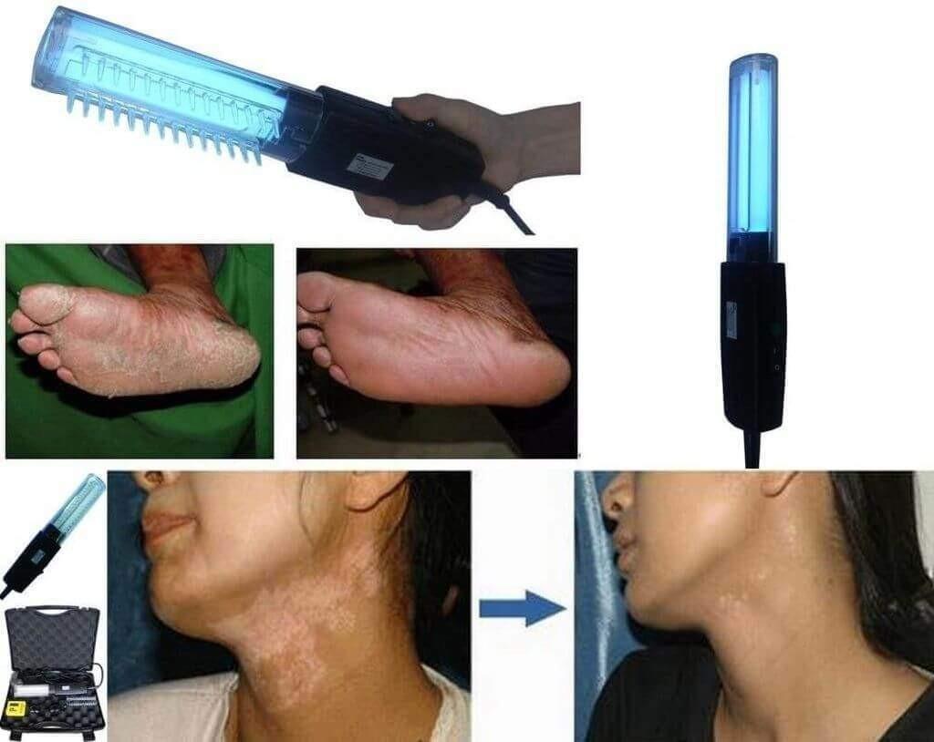 ПУВА-терапия при псориазе