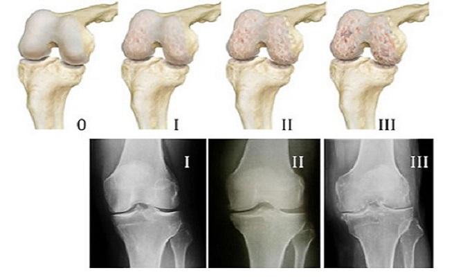 Разрушение колена