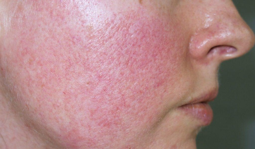 Побочные эффекты и возможные риски при лазерной подтяжке лица