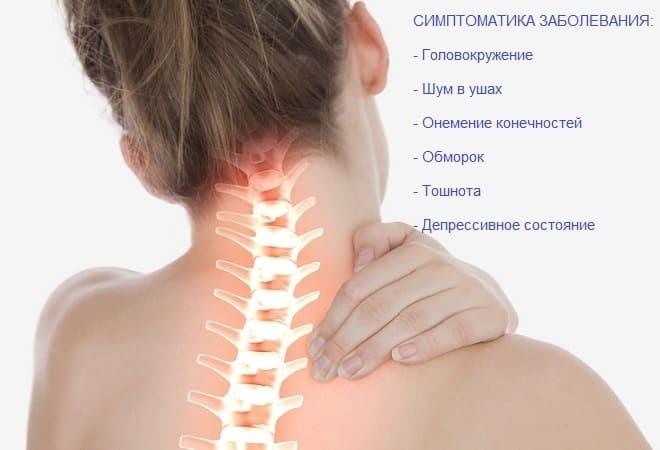 Симптоматика синдрома позвоночной артерии