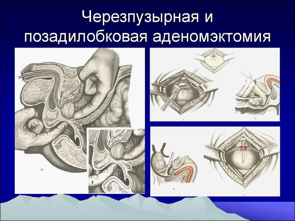 Вызванные дерматофитами грибковые заболевания