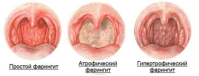 Так выглядит горло больного человека